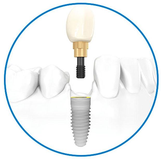 gama-alta-diente-individuall-nobel-biocare-clinica-implante