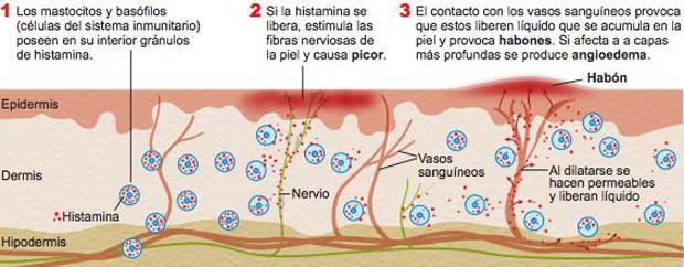 Urticaria-Cronica